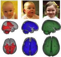 Los niños que toman leche artificial tienen un peor desarrollo cerebral que los que toman leche materna