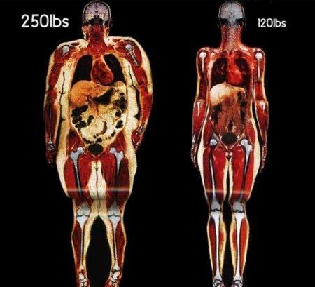 Diferencias entre una persona obesa y con normopeso