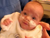 Un bebé prematuro de 300 gramos ha sobrevivido sin complicaciones