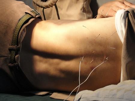Acupuncture 3275458 1280