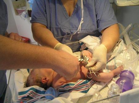 Esperar tres minutos para cortar el cordón umbilical, beneficioso para la salud del bebé
