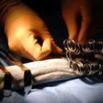 La operación para reconstruir la virginidad, ¿una necesidad para sobrevivir?