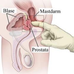 Cáncer de próstata y terapias III