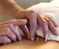 La acupuntura podría ayudar a lograr el embarazo en la fertilización in vitro