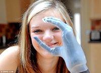 Una prótesis de mano con dedos biónicos
