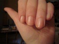 Consejos para evitar las uñas quebradizas
