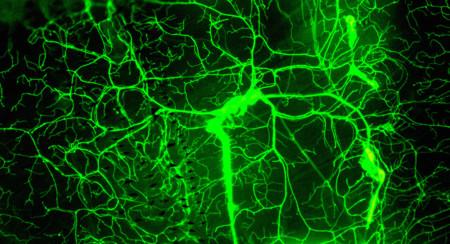 ¿Pueden los ultrasonidos restaurar la memoria? Este grupo de científicos cree que puede curar el Alzhéimer