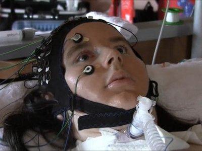 """Un dispositivo que """"lee la mente"""" permite que pacientes con parálisis profunda puedan comunicarse"""
