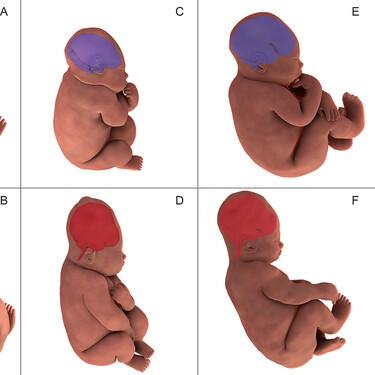 Así se deforma la cabeza del bebé durante el parto para facilitar su paso por la pelvis materna