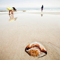 Picaduras de medusas en niños: ¿cómo prevenirlas y qué hacer?