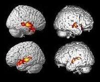 Las imágenes subliminales tienen efectos fisiológicos sobre el cerebro