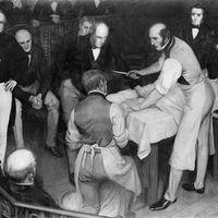 """""""El cuchillo más rápido de Londres"""": cuando la cirugía era una carrera de velocidad contra la muerte"""