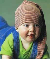 Irritación de la barbilla del bebé por babeo