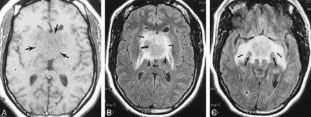 Móviles y cáncer. Los oncólogos creen que la OMS se ha precipitado en sus declaraciones