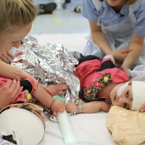 Dos hermanas siamesas unidas por la cabeza fueron separadas con éxito gracias a una donación y ya han recibido el alta