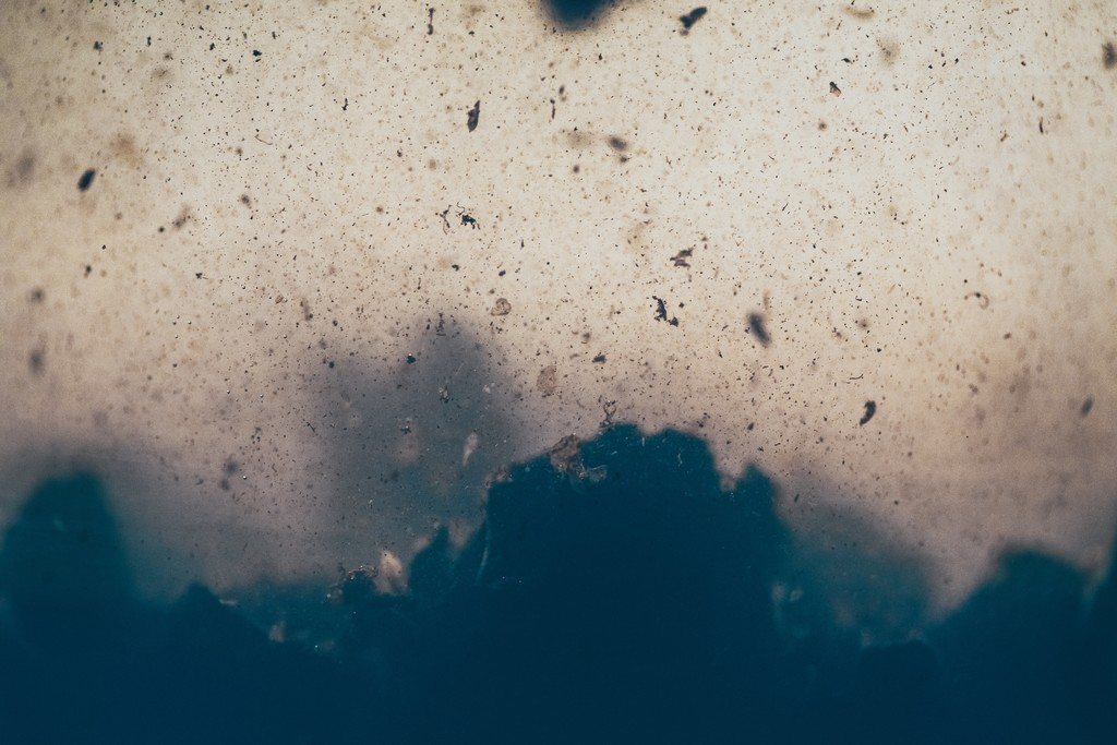 Lo que sabemos además la bacteria come-carne que vivía en playas tropicales: en el punto los monstruos de constantemente se hacen globales
