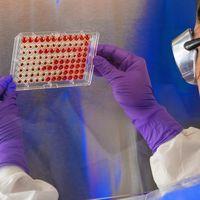 Ya son siete las personas con leucemia curadas en España gracias a CAR-T, una novedosa técnica inmunoterapéutica