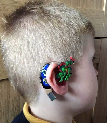 Una madre personaliza audífonos para que su hijo sordo esté orgulloso de llevarlos