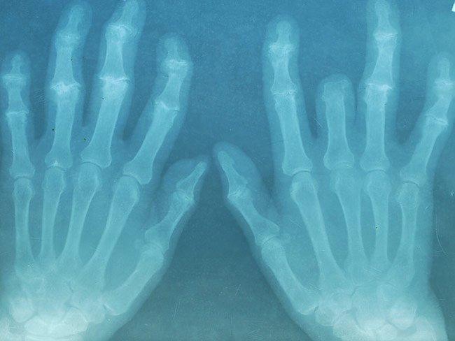 Algunos ejercicios para mejorar la artritis