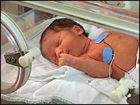Los bebés prematuros tienen más posibilidades de convertirse en niños hiperactivos