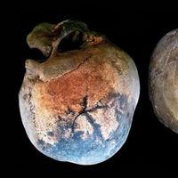 Cerebros hirviendo hasta explotar los cráneos: el horror mortal provocado por el Vesubio