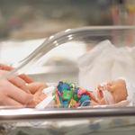 Se puede predecir con una precisión del 75-80% si el parto será prematuro con una muestra de sangre
