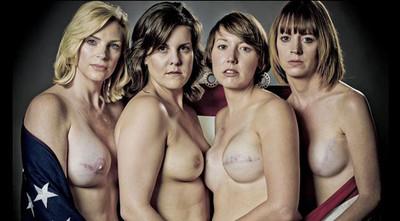 SCAR, un impactante proyecto fotográfico con supervivientes de cáncer de mama