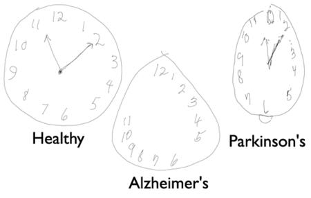 Dibujar con un lápiz digital permite una detección precoz del Alzheimer o el Parkinson