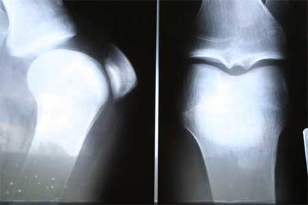Rotura de ligamento cruzado, el enemigo de la rodilla