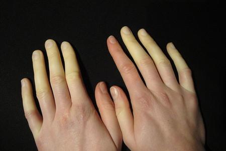 1024px Raynaud Syndrom