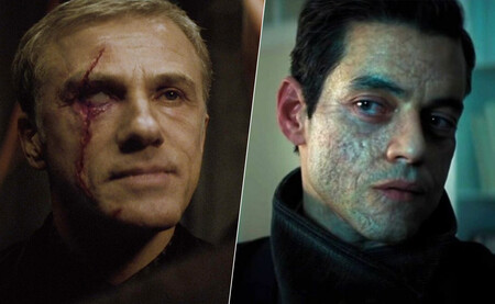 Muchos villanos de Bond están desfigurados. Y la gente que lo está en la vida real se cansa de ser el malo