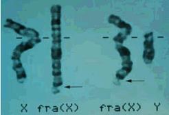 Un paso más en la cura del Síndrome X Frágil