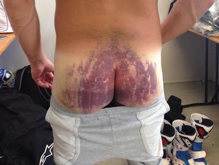SBK Australia 2015: la dolorosa marca con la que corrió Randy De Puniet
