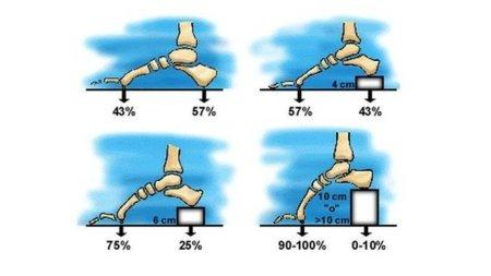 Lo que sucede en nuestros pies cuando usamos tacones 67622b82d929