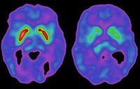 Una nueva molécula contra el Parkinson