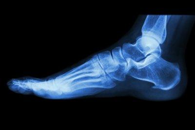 Cuándo es necesaria la radiografía en un esguince de tobillo