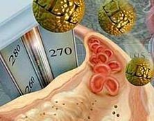 Los mandamientos contra el colesterol