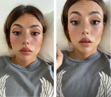Facebook Confirma Que Los Filtros Que Promuevan La Cirugía Estética Se Eliminarán De Instagram