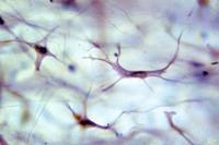 Cultivo de fibroblastos: lo último para rellenar arrugas