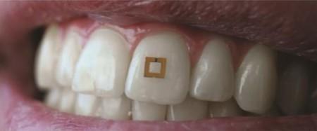 dientes rastrean lo que comes