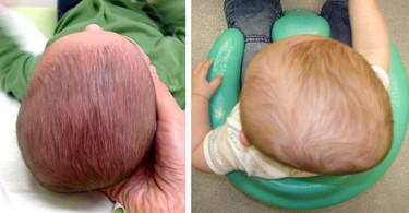 Plagiocefalia: ¿Cómo prevenir y tratar la cada vez más frecuente deformidad de cabeza de los bebés?