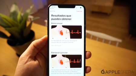 Analisis Apple Watch Series 4 Electrocardiograma Applesfera 07