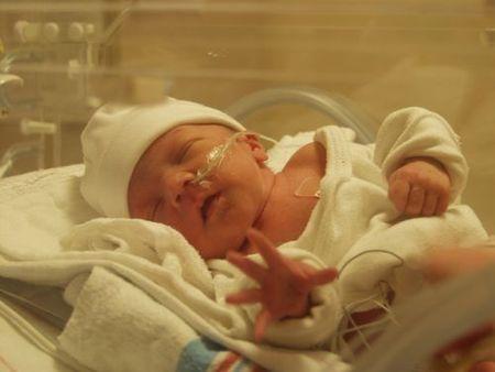 Un bebé de 420 gramos sale adelante