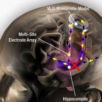 ¿Existen prótesis de cerebro biónica?