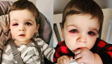 Una madre advierte sobre las bacterias en los juguetes de baño que causaron una grave infección en los ojos de su bebé