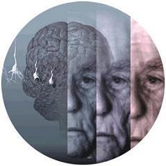 Prevenir el Alzheimer con la alimentación