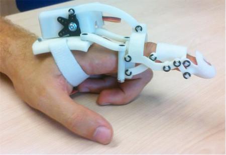 Esta prótesis personalizada simula el movimiento exacto de tu dedo