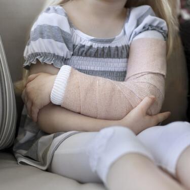 Fracturas de huesos en niños: cuáles son las más frecuentes y cómo se tratan