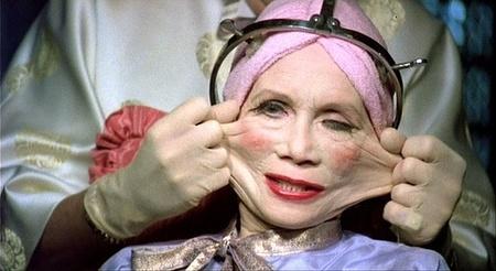 Botox, ¿la solución? III