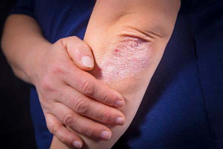 Todo sobre la psoriasis: qué es, por qué se produce, cómo se trata y cómo puedes ayudar a su normalización